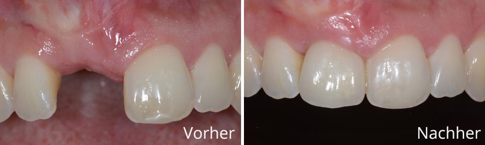 Beispiel 4: Vollkeramische Implantatrekonstruktion