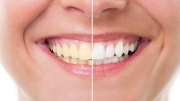 Bleaching Ästhetische Zahnmedizin